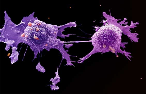 Studies Highlight 'Potential New Targets for Immunotherapy'