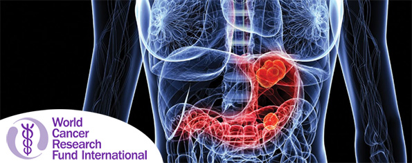 Diet, nutrition, physical activity and stomach cancer