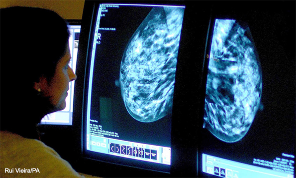 Cancer Rates Set to Increase Six Times Faster in Women Than Men