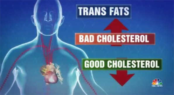 Trans Fat Ban Saved Lives in New York, Study Shows