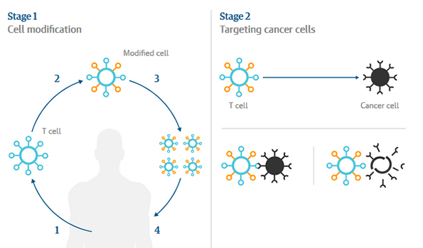 How modified T-cell cancer therapy works