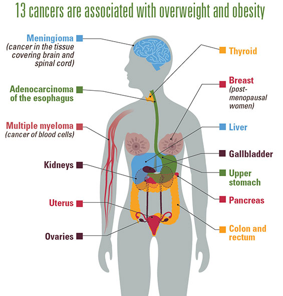 13 Cancers are associated with overweight and obesity