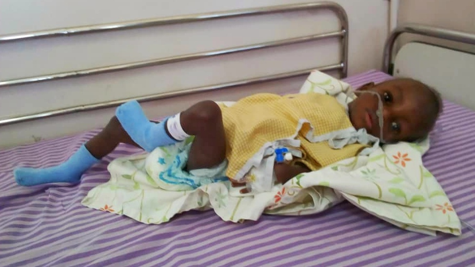 Baby B recovering from heart surgery in India