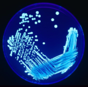 Legionella Disease under a microscope