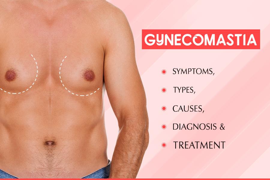 gynecomastia symtoms, gynecomastia surgery cost in hyderabad