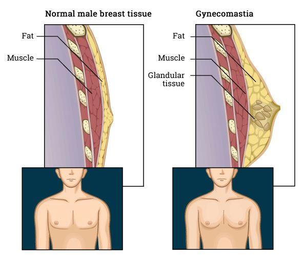 gland gynecomastia male breast male boobs treatment hospital near me warangal