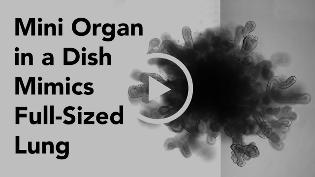 "New Lung ""Organoids"" In a Dish Mimic Features of Full-Size Lung"