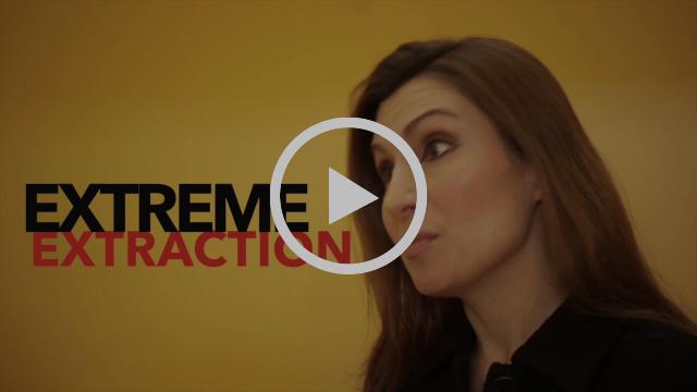 Video 4 - Acidization